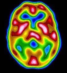 brain_pet_scan