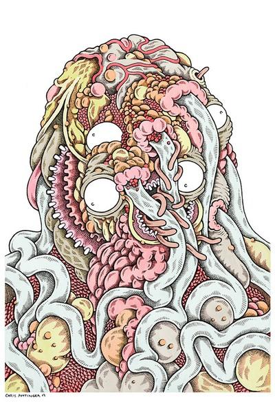 Tangled Wart Abscess - Chris Pottinger www.TASTYSOIL.com